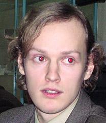 red eye effect